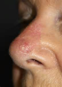 Cancer On Nose Skin Flap Photos