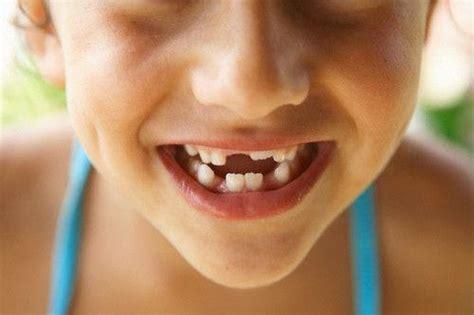 blog canyon gate dental  orem