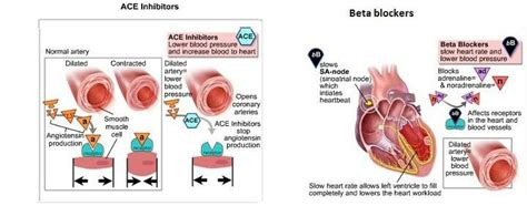 Effects Of Ace Inhibitors And Beta Blockers In Heart