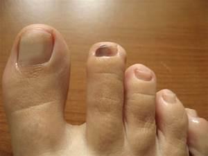 Отвалился ноготь на ноге из за грибка