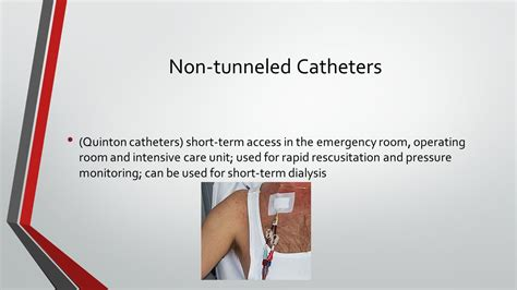 Different Types Of Iv And Dialysis Accesses