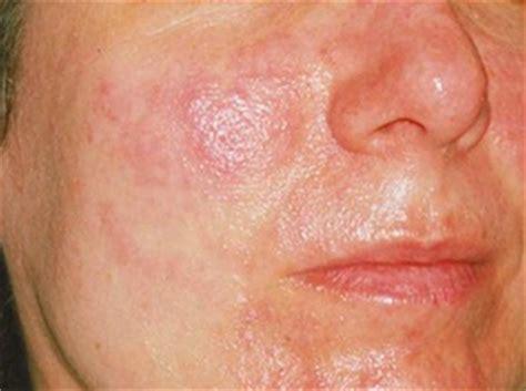 acne rosacee ecole  formations en aromatherapie