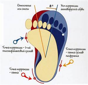 Пузырьки на ноге грибок