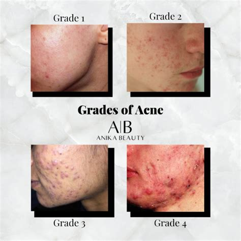 teresa paquin acne    grades        aestheticia