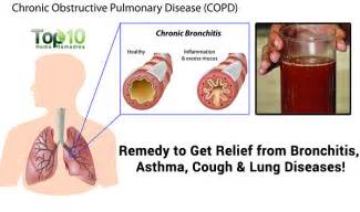 1000 images about home remedies home remedies for asthma bronchitis