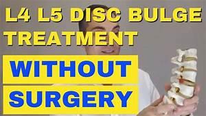 L4 L5 Disc Bulge Treatment Without Surgery