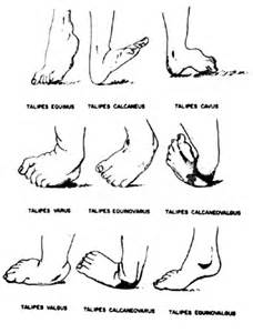 From: Sucheston ME, Cannon MS eds. Congenital Malformations ...  Cerebral Palsy Clubfoot