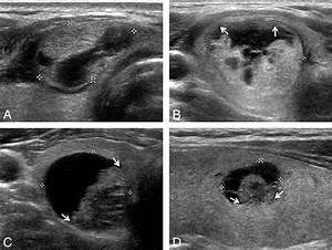 Follicular Carcinoma Ultrasound | www.pixshark.com ...