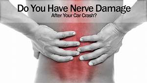 Do You Have Nerve Damage After Your Car Crash
