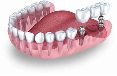 Teeth Implant Dental Missing Replacement