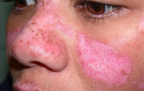 discoid lupus erythematosus advanced dermatology