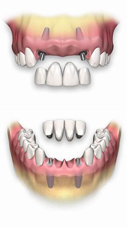 Dental Implant Bridge Implants Tooth Teeth Dents