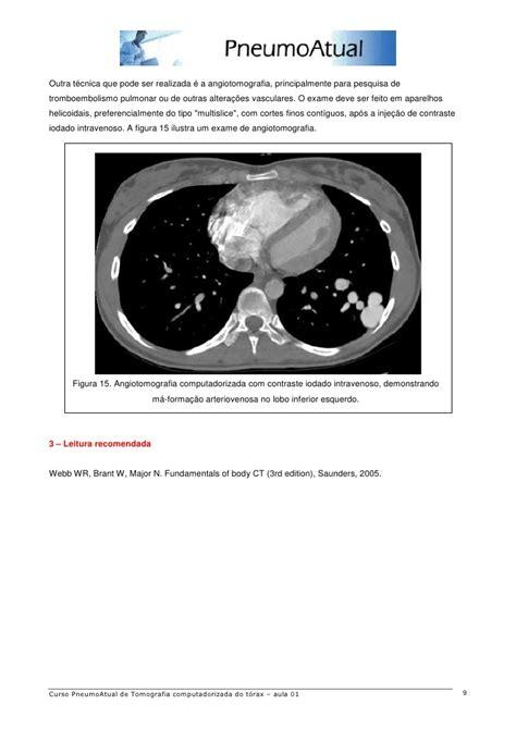anatomia tc de torax