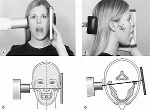 30  The Temporomandibular Joint