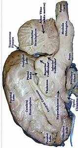 Pretty Good Picture Of The Sheep Brain Labeled