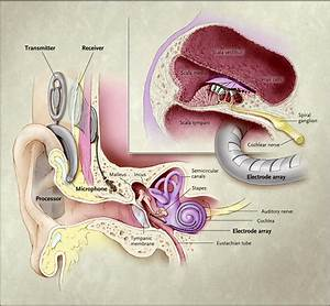 Cochlear Implants In Children  Surgical Site Infections