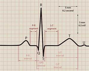 Normal Ecg Tracing And Label images
