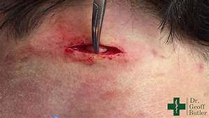 Removal Of An Epidermal Cyst At The Nape Of The Neck