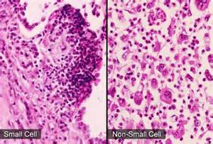 Non Small Cell Lung Cancer Cells