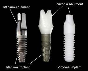 Dental Implant - BMB Dental Clinic