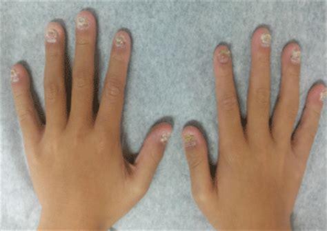 images  nail psoriasis  psoriatic nails
