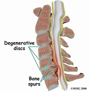 Moderate to severe spinal canal stenosis