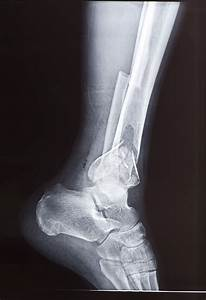 Breakthrough 'Wrapping Paper' For Broken Bones: Membrane ...