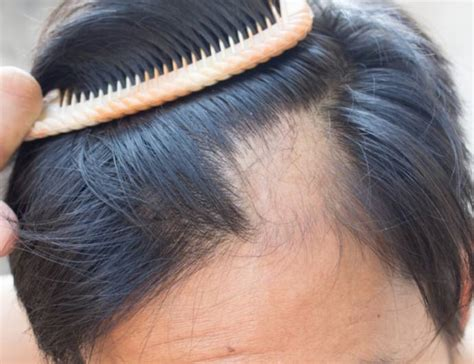 How To Control Hair Fall - Home Remedies To Stop Hair Loss
