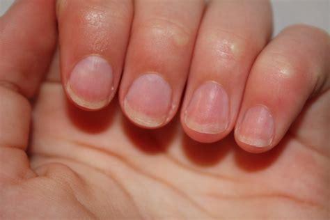 les uv pour ongles comment arr 234 ter de se ronger les ongles de nailineart