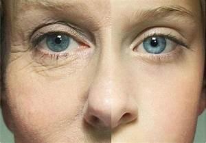 Как избавиться от морщин и мешков под глазами быстро в домашних условиях