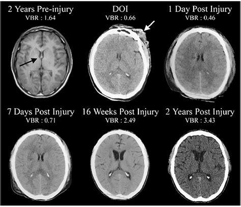 brain sciences  full text damage  myelin