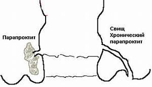 Гепариновая мазь кому помогает от внешнего геморроя