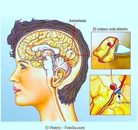Kinking Carotide Interna Sintomi Ictus Cerebral Isqu 233 Mico O Hemorr 225 Gico Tratamiento Y