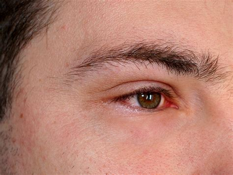 inflammation   eye symptoms   treatment