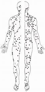 Fibromyalgia Pressure Points Diagram