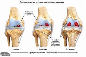 Снять боль в коленном суставе артроз