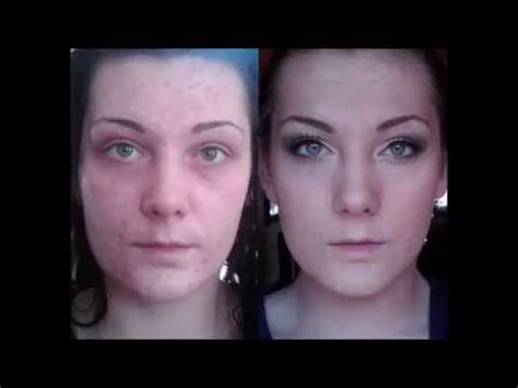 thayers toner how to get rid of acne scars witch hazel acne home