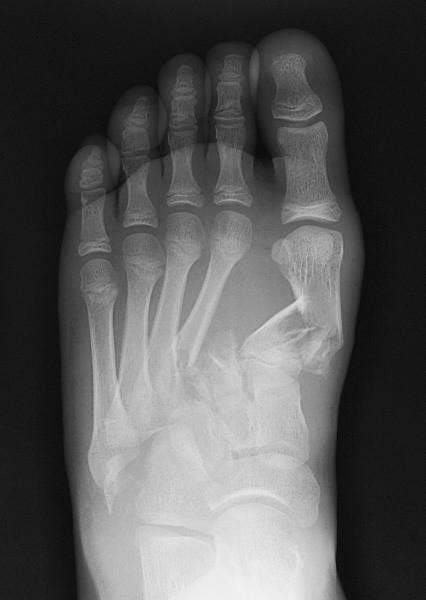 Injuries of the lisfranc joint were found in 66 patients (9%). Lisfranc Injury