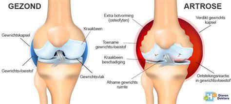 artrose verschijnselen