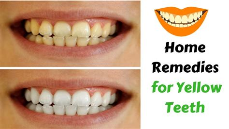 Home Teeth Whitening by Yellow Teeth Baking Soda Teeth Whitening Home Remedies