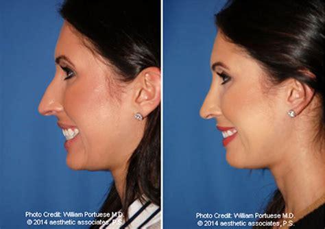 asymmetrical nose surgery crooked nose