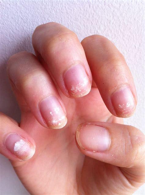 Shellac Ruined My Nails! But Opi's Nail Envy Saved Them