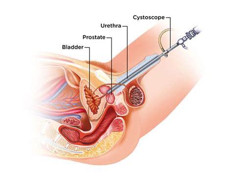cystoscopy bladder male cancer detection diagram