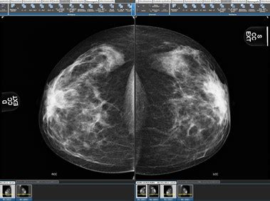 suitestensa mg mammography software esaote