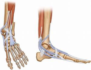 Irreducible Ankle Fracture