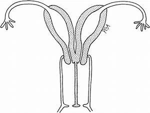 Scumbag Uterus  Try Having Two  I Give You  Uterus