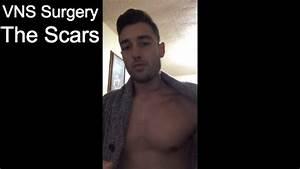 Vagus Nerve Stimulator - Scars- 1 Week After Surgery