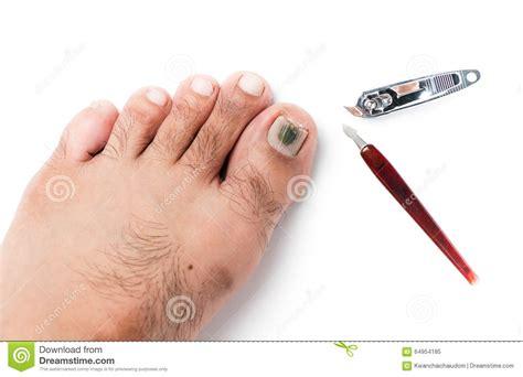 chignons sur l ongle de pied et les coupe ongles photo stock image 64954185