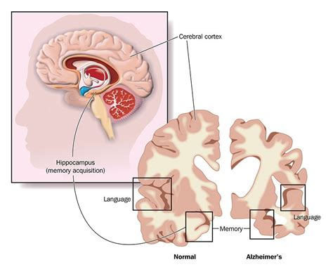 Alzheimer's disease is a progressive neurologic disorder that causes the brain to shrink (atrophy) and brain cells to die. Alzheimer's Disease - Symptoms, Causes & Treatment of ...
