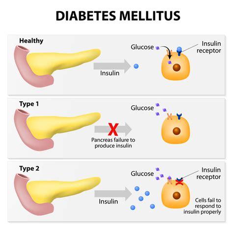 In Diabetes Mellitus Type 2 Diabetes Genetics Home Reference Nih